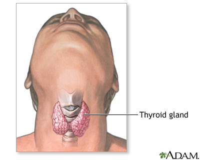 Thyroid gland removal | UF Health, University of Florida Health