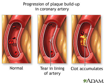 Heart attack uf health university of florida health progressive build up of plaque in coronary artery ccuart Images