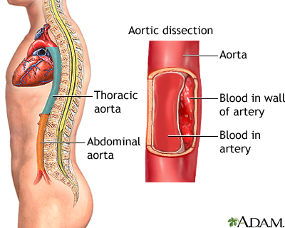 Aortic Dissection Uf Health University Of Florida Health