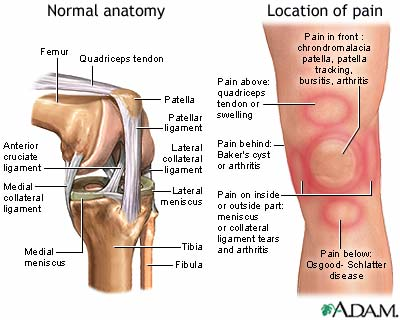 Collateral ligament (CL) injury - aftercare | UF Health, University ...