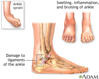 cherry juice for acute gout gout in the ankle treatment gout ankle deformity