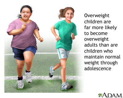 the dangers of being overweight or obese as reasons to eat healthy and exercise
