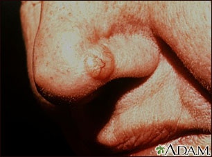 Skin cancer, basal cell carcinoma - nose
