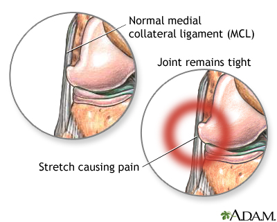 lateral collateral ligament (lcl) injury | uf health, university, Human Body