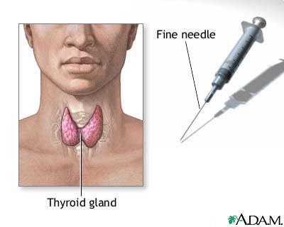 Fine needle aspiration of the thyroid | UF Health, University of ...