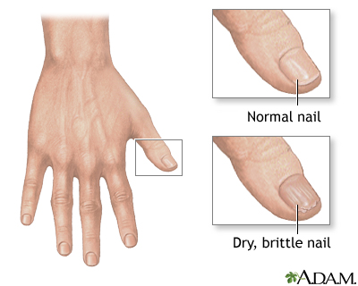 Nail abnormalities | UF Health, University of Florida Health