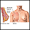 Breast augmentation - series - Normal anatomy