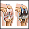 Knee joint replacement prosthesis