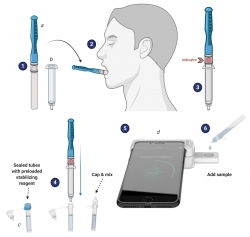 """The CLIP-CAM technology for the Luminostics-UF team involves the collection of saliva by a collection pad on a """"lollipop"""" stick that is set below and to the side of the tongue for 3-5 minutes until the indicator spot changes color, indicating the pad is full of saliva. The pad then is inserted into a syringe, and pushed down to release the saliva into a tube containing stabilizers. The CLIP cassette is affixed to the smartphone, and the corresponding """"disease"""" cassette is inserted and the saliva is added to a port. The sample is then read by an app on the phone that uses the LED flash to initiate detection of SARS-CoV-2 virus antigen, anti-SARS-CoV-2 antibodies, or anemia and malaria parasite biomarkers. (Courtesy of (Courtesy of Dr. Bala Raja, Dr. Rhoel Dinglasan and BioRender.com)"""