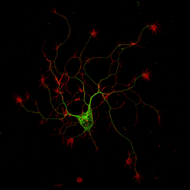 A cultured mouse adult motor neuron imaged with a high-resolution multiphoton microscope (image courtesy of Dr. Erik Vitriol, UF Department of Cell Biology)