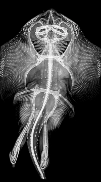 X-ray of an adult male skate