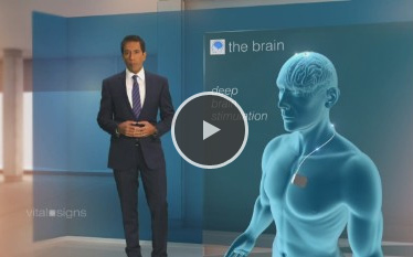 Vital Signs - Sanjay Gupta - CNN - What is Deep Brain Stimulation