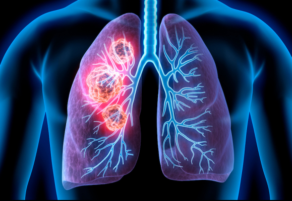 Medical Illustration of lung cancer - cancerous area in lungs.